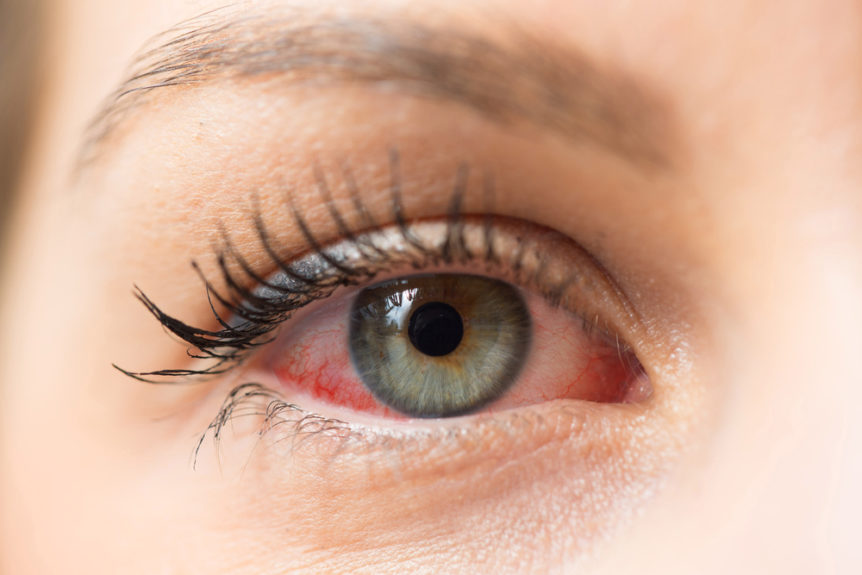 how-to-treat-eye-allergies-first-eye-care