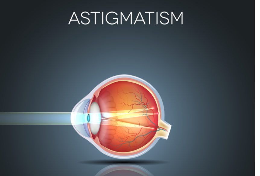 What is Astigmatism First Eye Care North Arlington