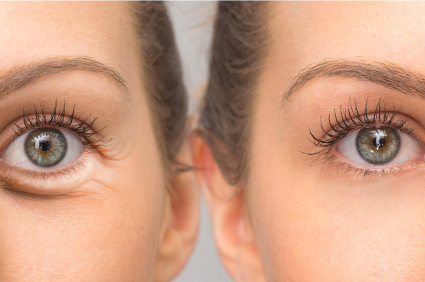 How to Get Rid of Under-Eye Bags First Eye Care North Arlington