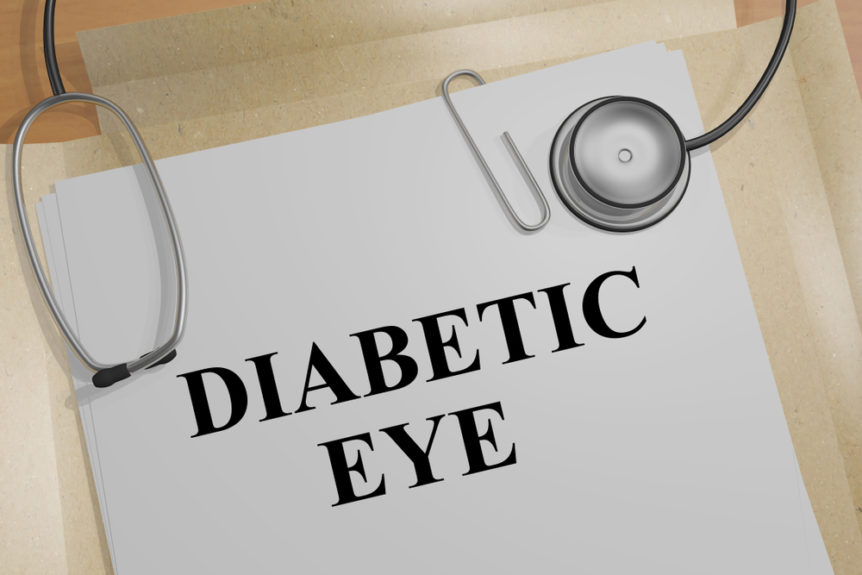 Diabetic Eye Care What You Should Know  | First Eye Care North Arlington