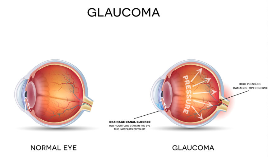 What is Glaucoma? - First Eye Care North Arlington