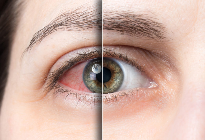 What is Dry Eye? - First Eye Care North Arlington