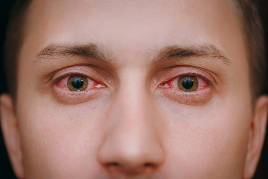 Effects of Allergies on Your Eyes - First Eye Care North Arlington