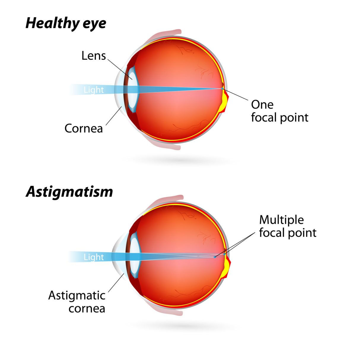 What Is Astigmatism? - First Eye Care North Arlington