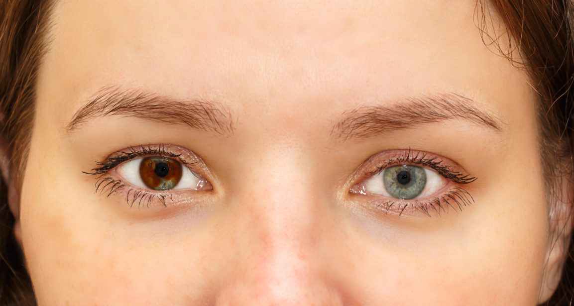 What is Heterochromia - First Eye Care North Arlington